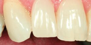 Fog pótlása VITA Suprinity anyaggal, végeredmény a szájban