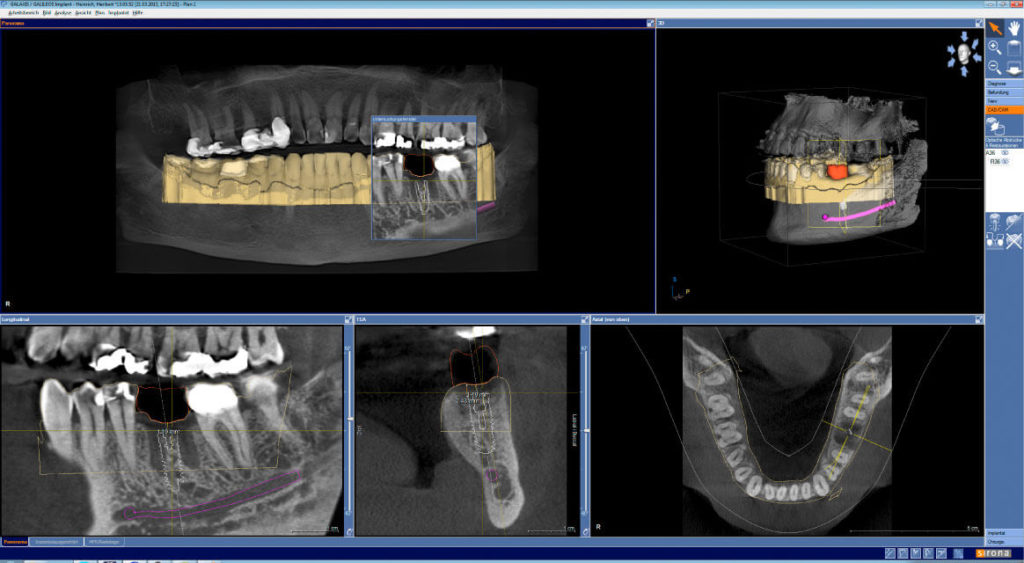 Implantátumos pótlás tervezése