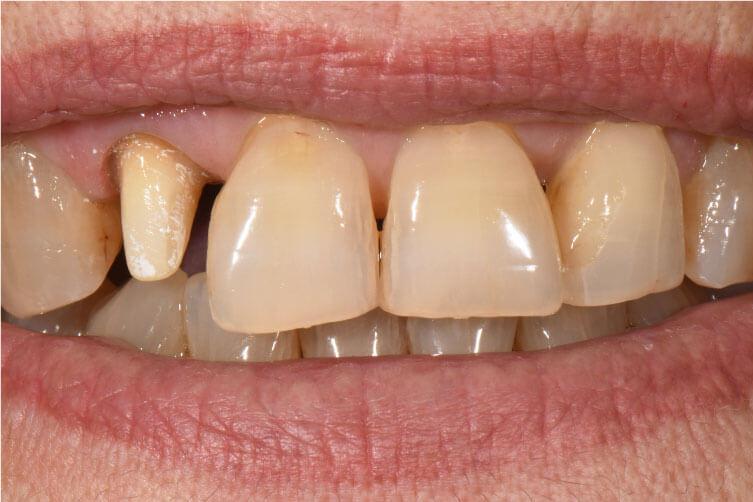 Ideiglenes pótlás eltávolítva a szájból