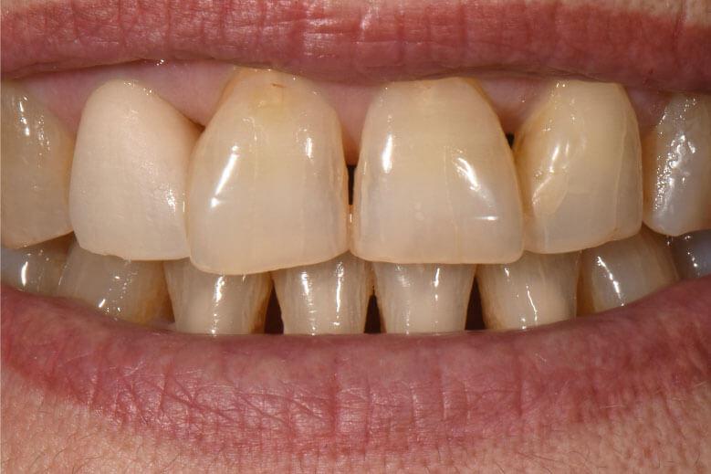 Túl világos fogpótlás az első dentin égetés után