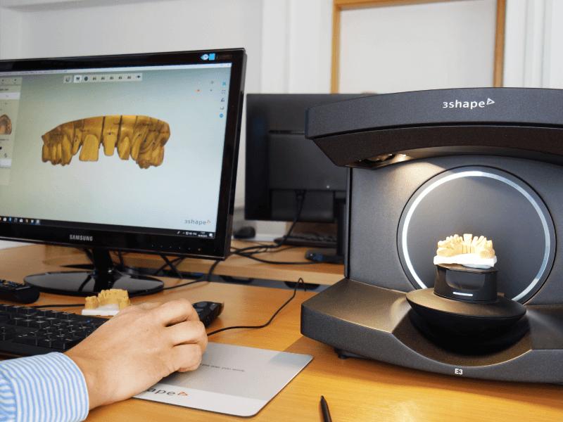 Digitális fogászati szkennelés és tervezés